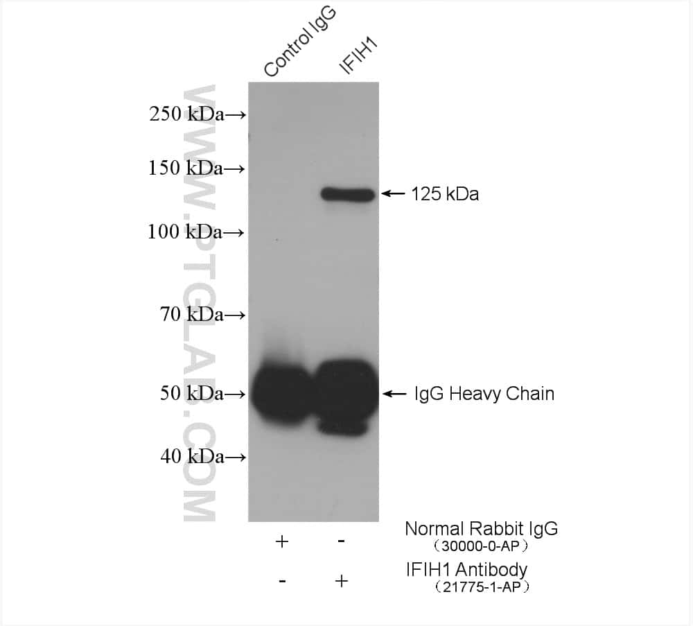 IFIH1 Antibody in Immunoprecipitation (IP)