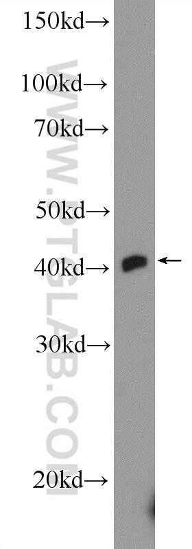 TTF1/NKX2-1 Antibody in Western Blot (WB)