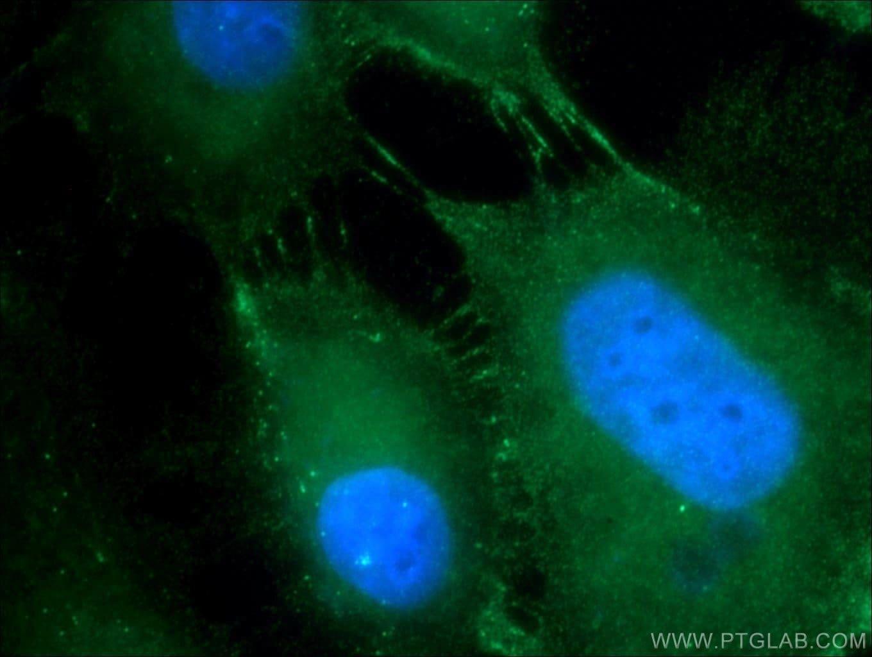 DSG2 Antibody in Immunofluorescence (IF)