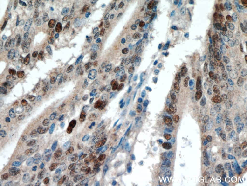 P53 Antibody in Immunohistochemistry (Paraffin) (IHC (P))