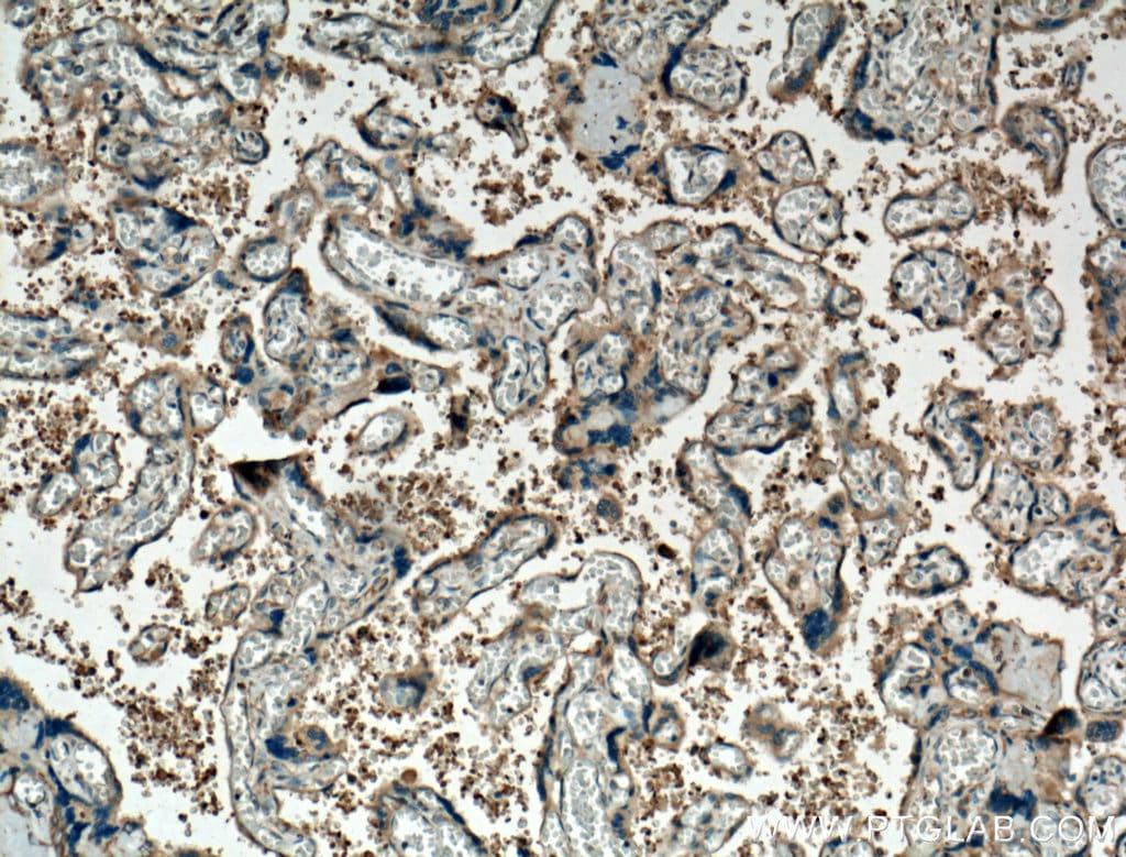 TGF-beta 1 Antibody in Immunohistochemistry (Paraffin) (IHC (P))
