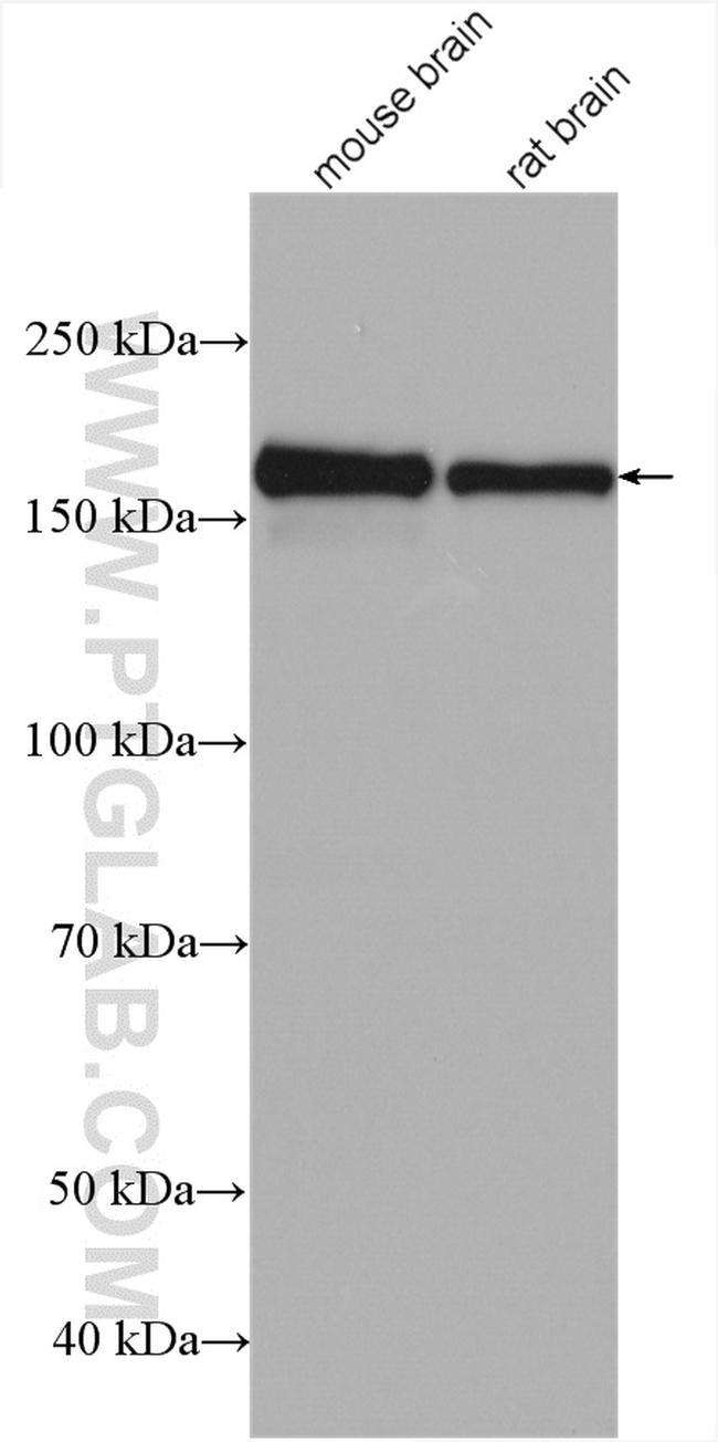 GRIN2B Antibody in Western Blot (WB)
