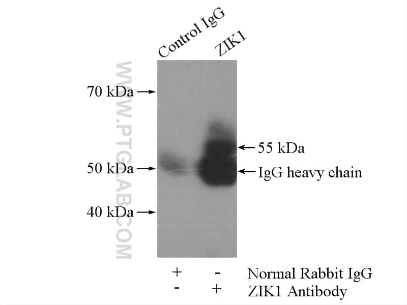 ZIK1 Antibody in Immunoprecipitation (IP)