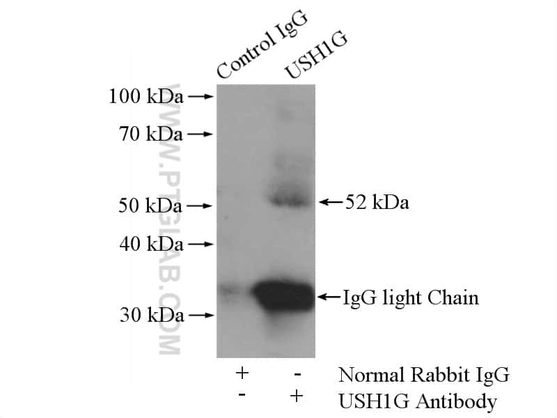 USH1G Antibody in Immunoprecipitation (IP)