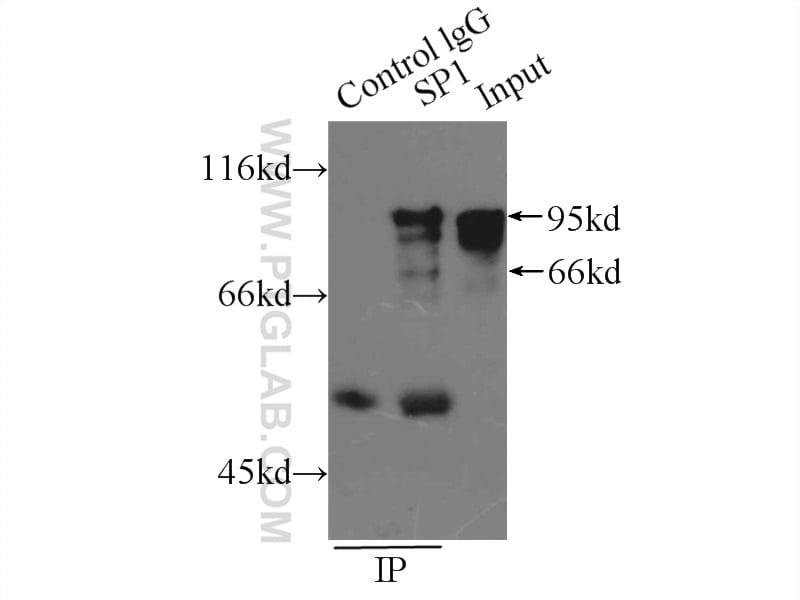 SP1 Antibody in Immunoprecipitation (IP)