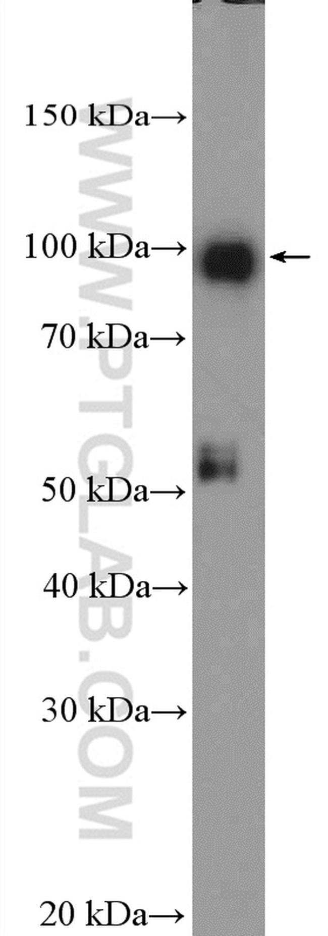 STRA6 Antibody in Western Blot (WB)