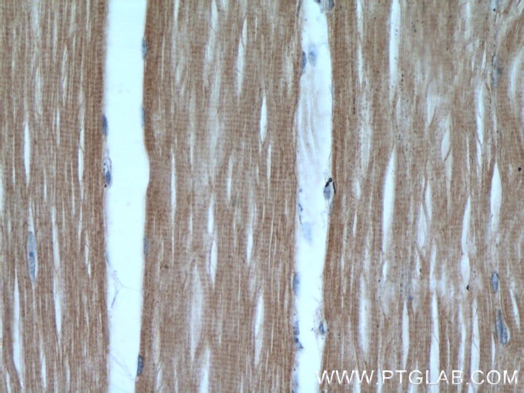 Hexokinase 2 Antibody in Immunohistochemistry (Paraffin) (IHC (P))