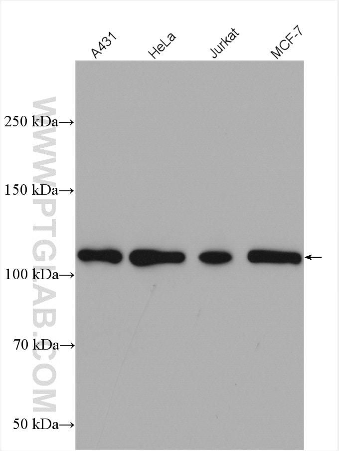 Hexokinase 2 Antibody in Western Blot (WB)
