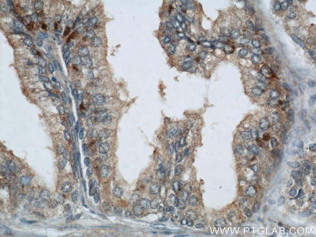GSK3B Antibody in Immunohistochemistry (Paraffin) (IHC (P))