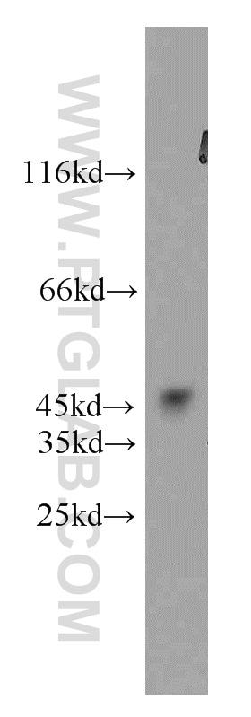 GSK3B Antibody in Western Blot (WB)