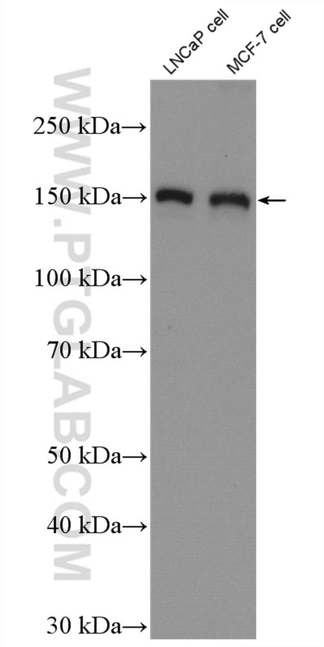 TBC1D1 Antibody in Western Blot (WB)