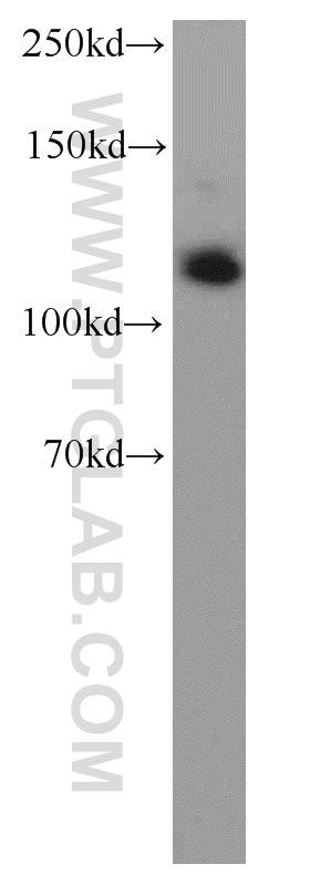 Rabenosyn 5 Antibody in Western Blot (WB)