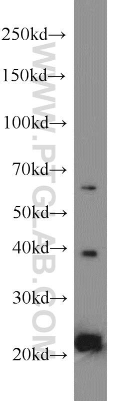 MPO Antibody in Western Blot (WB)