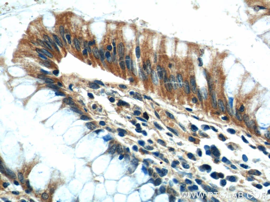 CEP164 Antibody in Immunohistochemistry (Paraffin) (IHC (P))