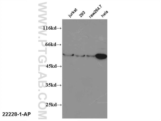 FOXP3 Antibody in Western Blot (WB)