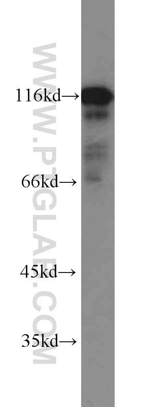 HIP1 Antibody in Western Blot (WB)
