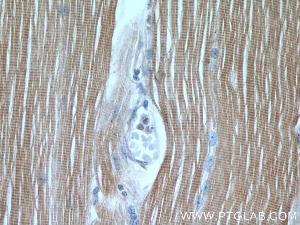 TNNI1 Antibody in Immunohistochemistry (Paraffin) (IHC (P))