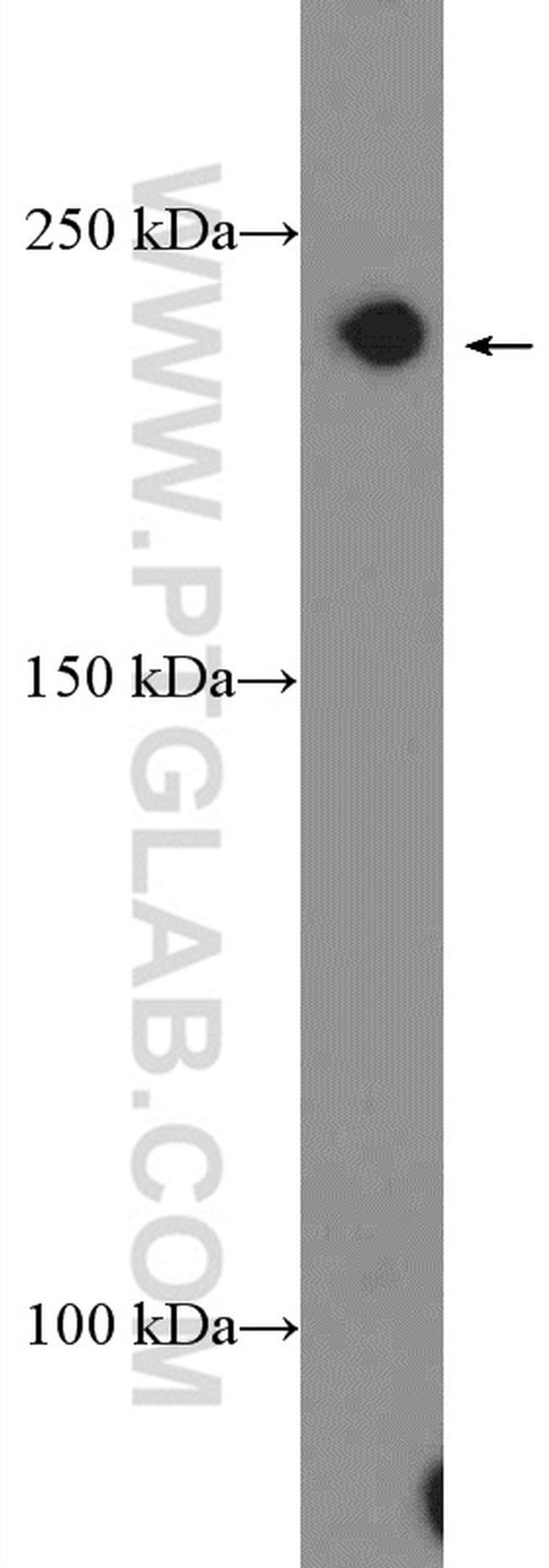 CACNA1D Antibody in Western Blot (WB)