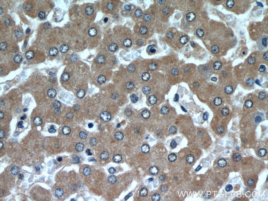 SAR1B Antibody in Immunohistochemistry (Paraffin) (IHC (P))