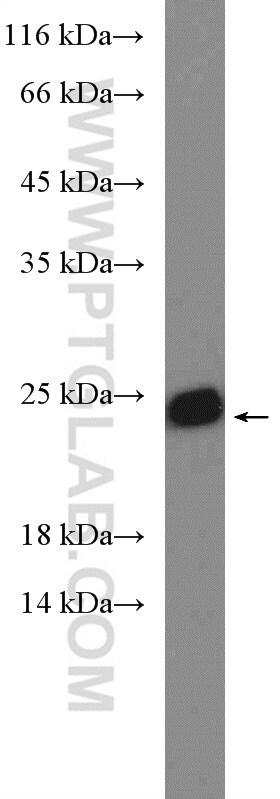 SAR1B Antibody in Western Blot (WB)