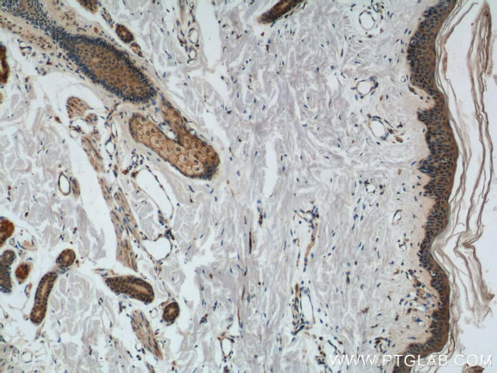 CCL27 Antibody in Immunohistochemistry (Paraffin) (IHC (P))