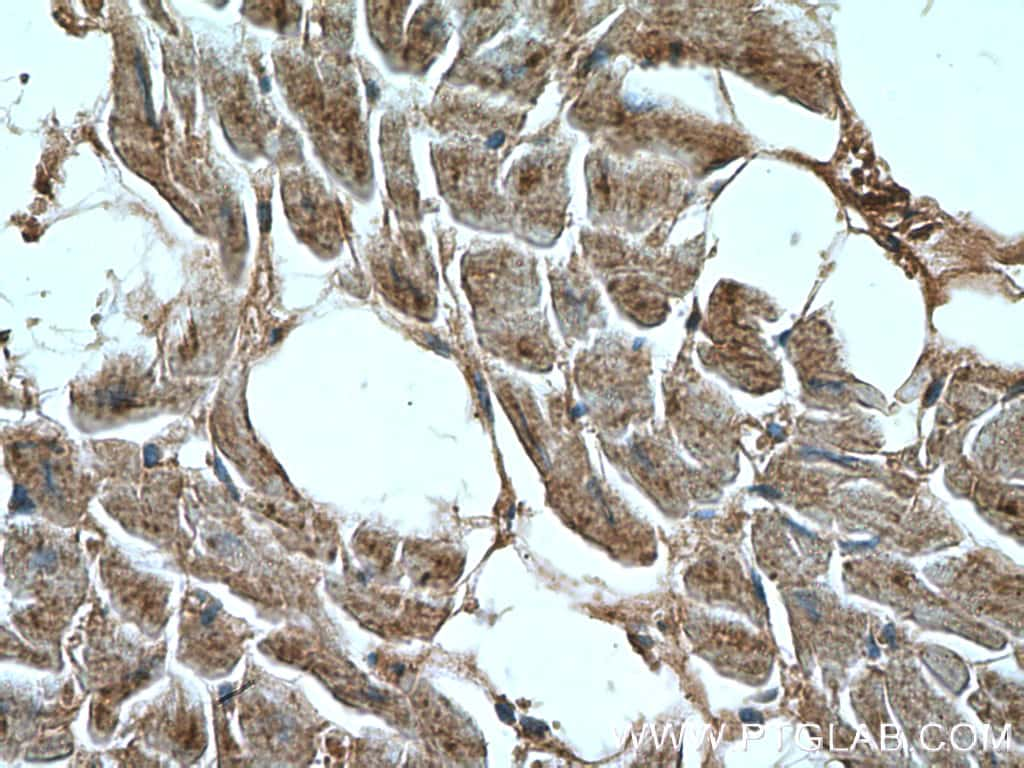 CCL18/MIP-4 Antibody in Immunohistochemistry (Paraffin) (IHC (P))