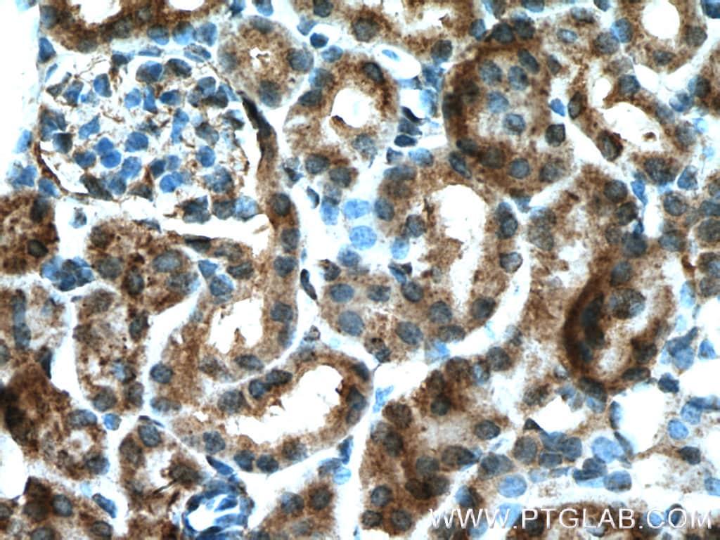 P glycoprotein Antibody in Immunohistochemistry (Paraffin) (IHC (P))