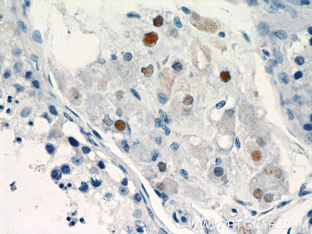 TCF4 Antibody in Immunohistochemistry (Paraffin) (IHC (P))