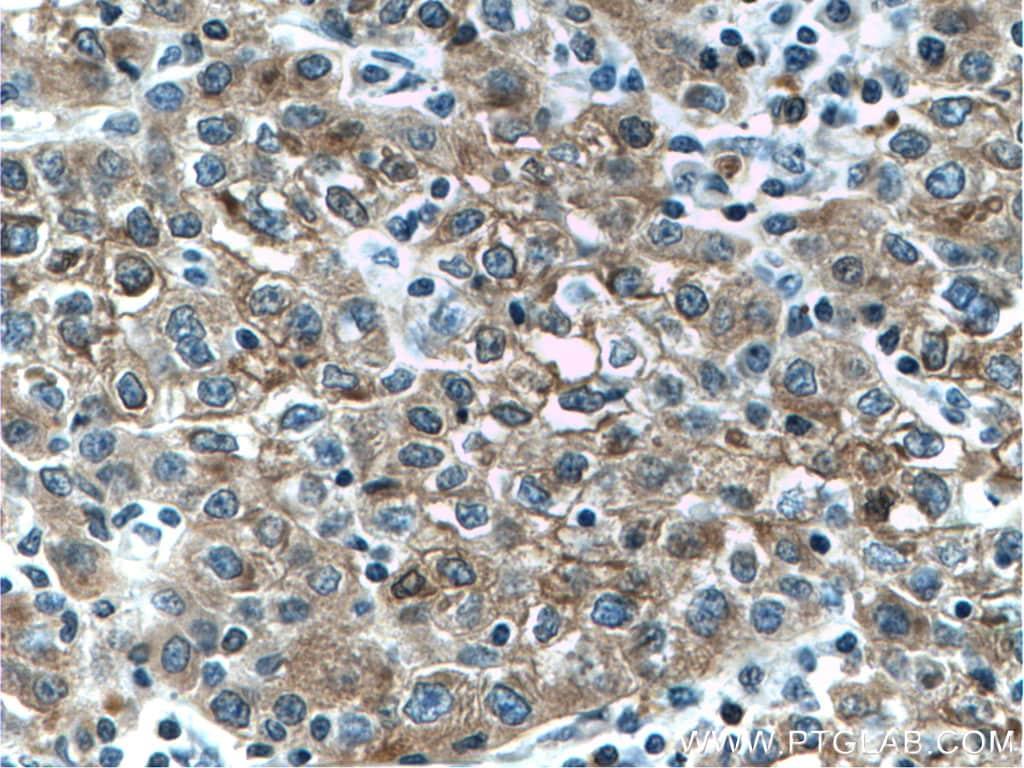 L-VEGFA Antibody in Immunohistochemistry (Paraffin) (IHC (P))