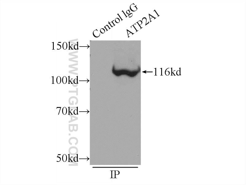 ATP2A1 Antibody in Immunoprecipitation (IP)