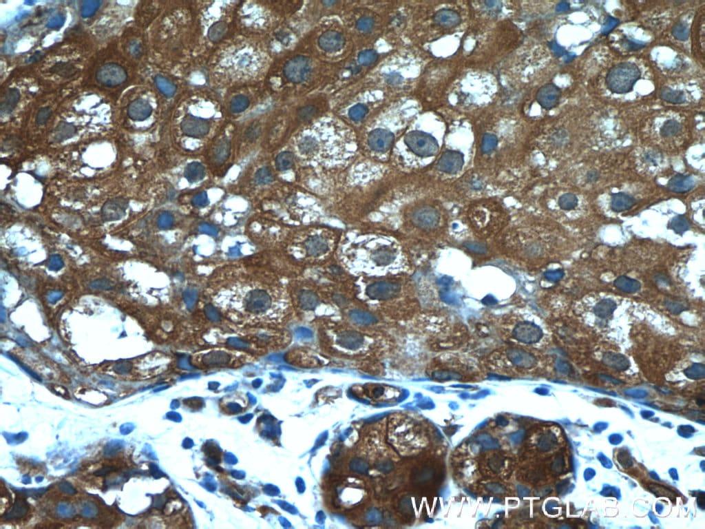 PKLR Antibody in Immunohistochemistry (Paraffin) (IHC (P))