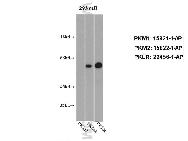 PKLR Antibody in Western Blot (WB)