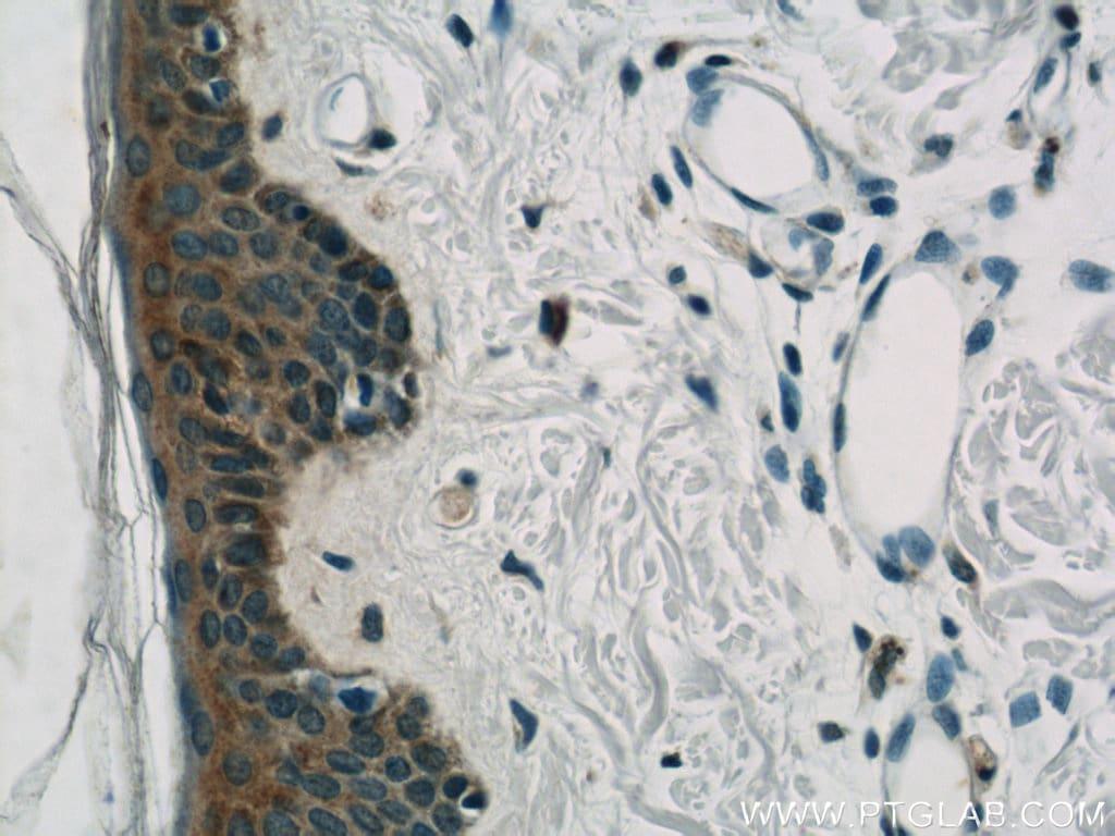 BCR Antibody in Immunohistochemistry (Paraffin) (IHC (P))