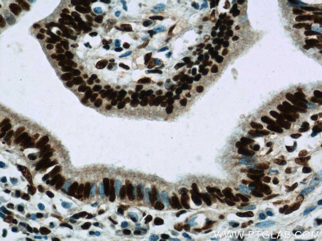CCAR2 Antibody in Immunohistochemistry (Paraffin) (IHC (P))