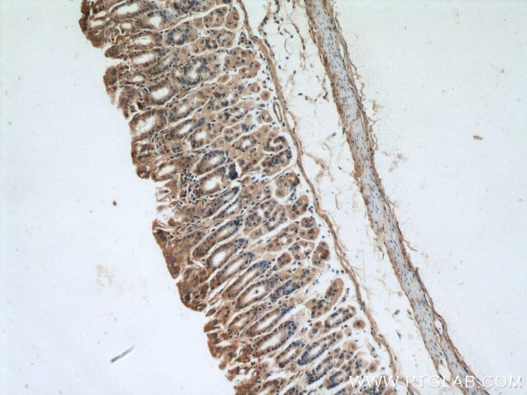 A4GNT Antibody in Immunohistochemistry (Paraffin) (IHC (P))