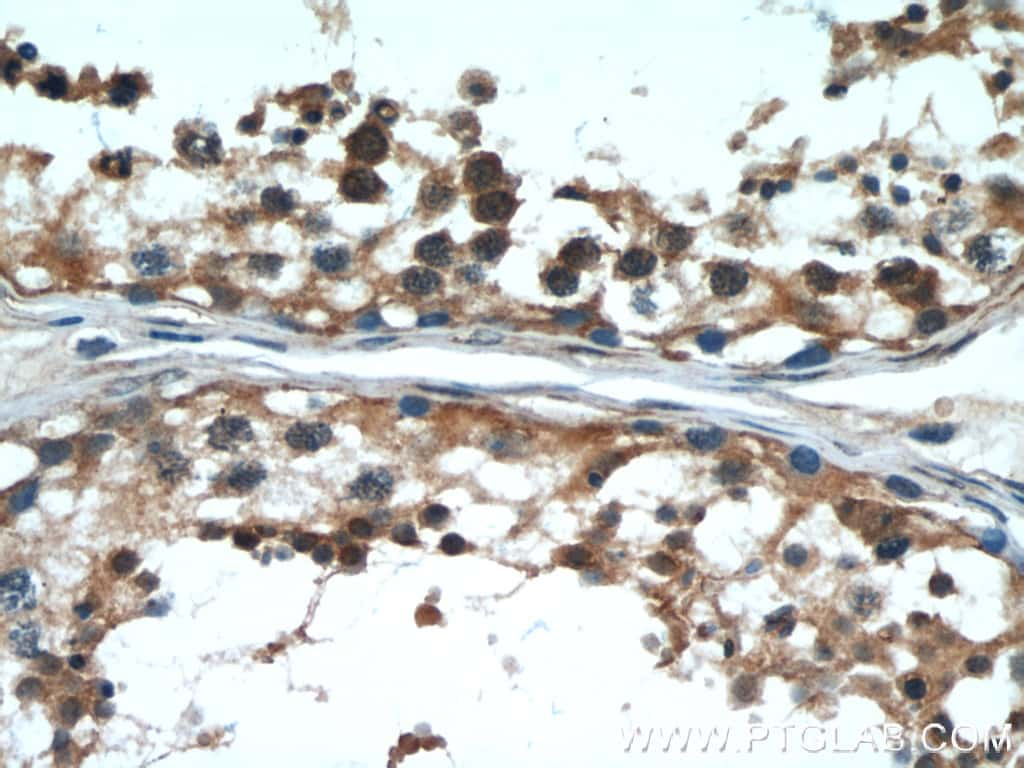 Inhibin beta A Antibody in Immunohistochemistry (Paraffin) (IHC (P))