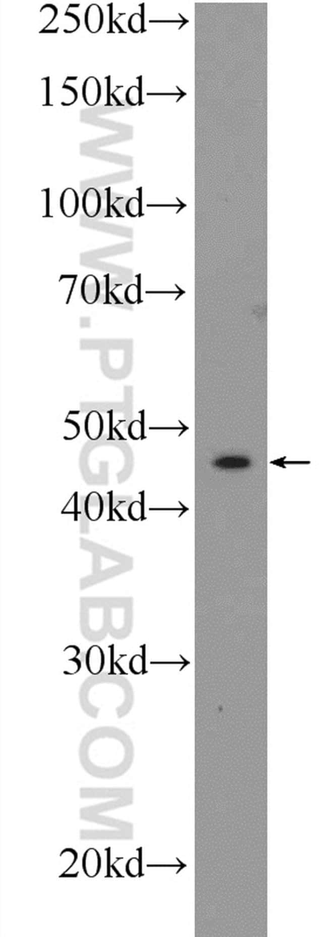 Connexin-46 Antibody in Western Blot (WB)