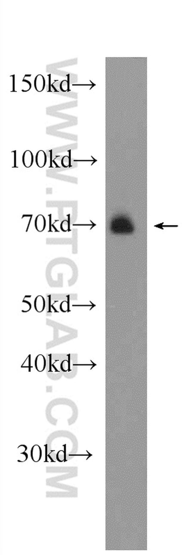 ARK5 Antibody in Western Blot (WB)