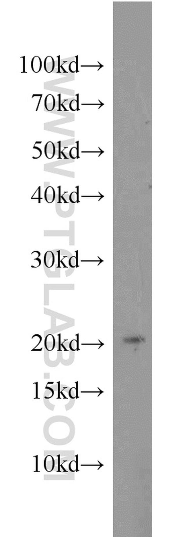 MIXL1 Antibody in Western Blot (WB)