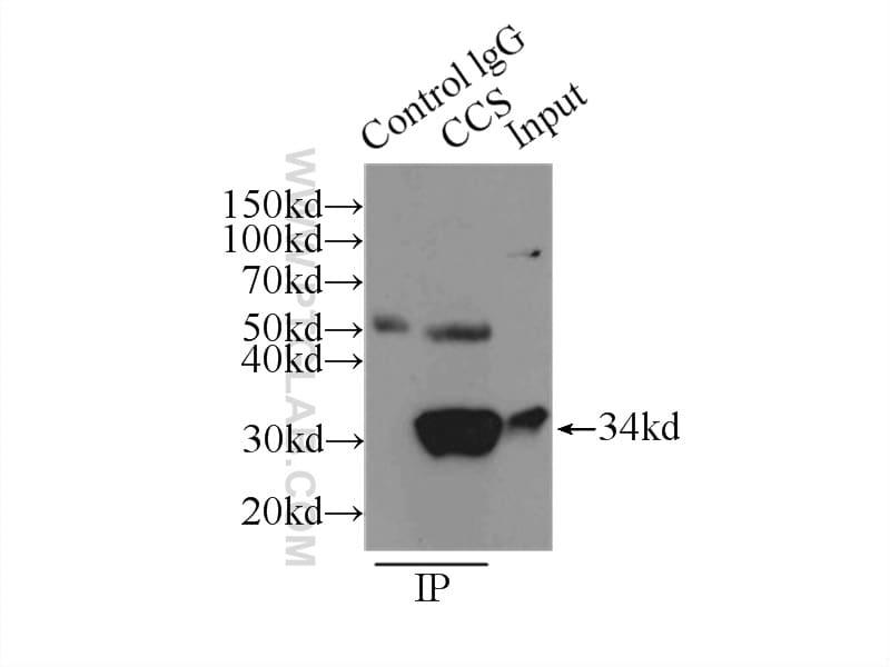 CCS Antibody in Immunoprecipitation (IP)