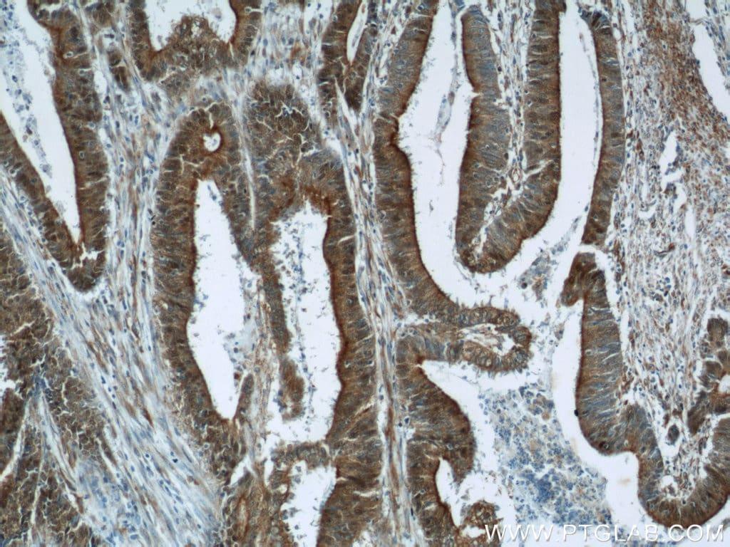 B3GNT7 Antibody in Immunohistochemistry (Paraffin) (IHC (P))
