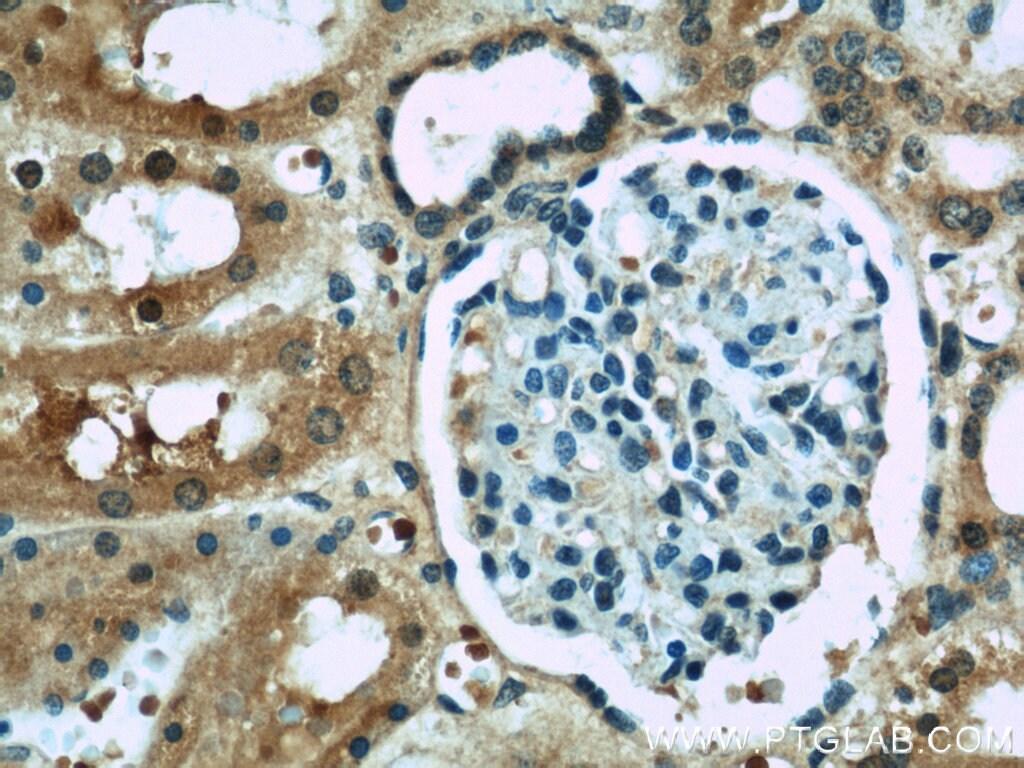 ACOT6 Antibody in Immunohistochemistry (Paraffin) (IHC (P))