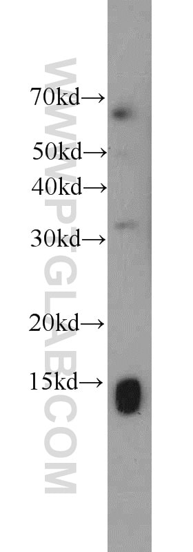 SCP2 Antibody in Western Blot (WB)