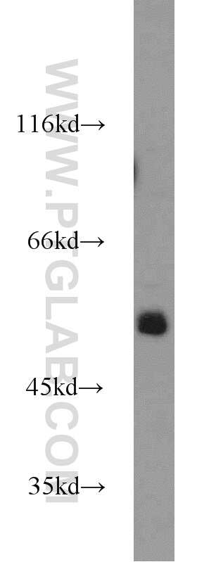 ZSCAN21 Antibody in Western Blot (WB)
