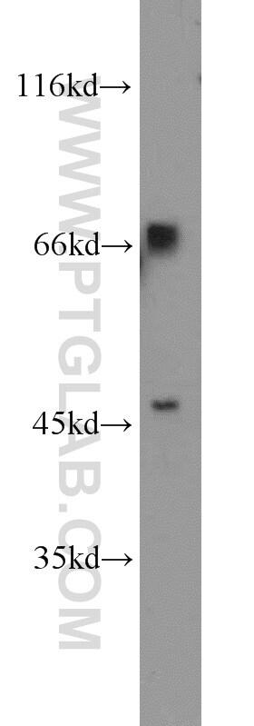 TBX18 Antibody in Western Blot (WB)