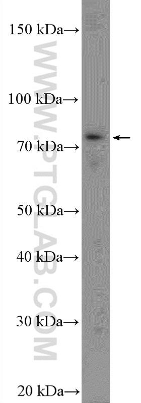 TICAM1 Antibody in Western Blot (WB)