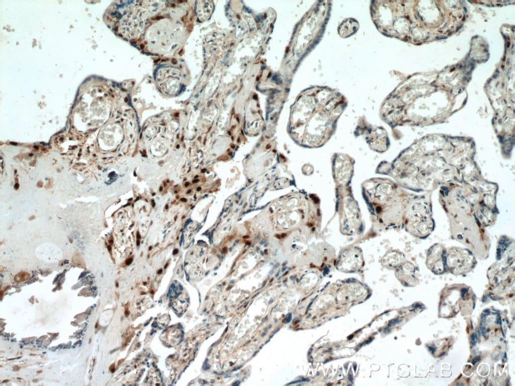 p57Kip2 Antibody in Immunohistochemistry (Paraffin) (IHC (P))