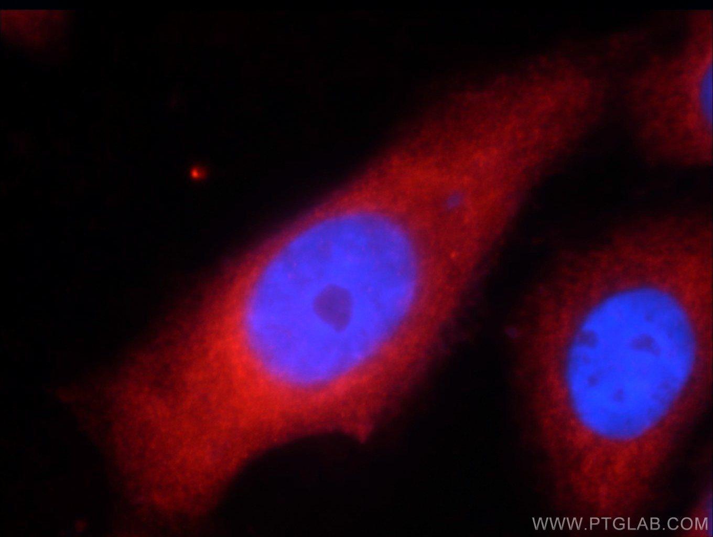 UPF1 Antibody in Immunofluorescence (IF)