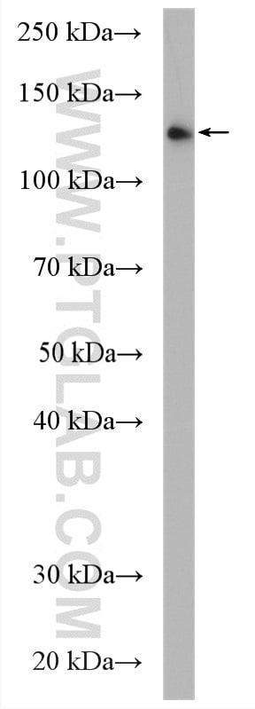 UPF1 Antibody in Western Blot (WB)