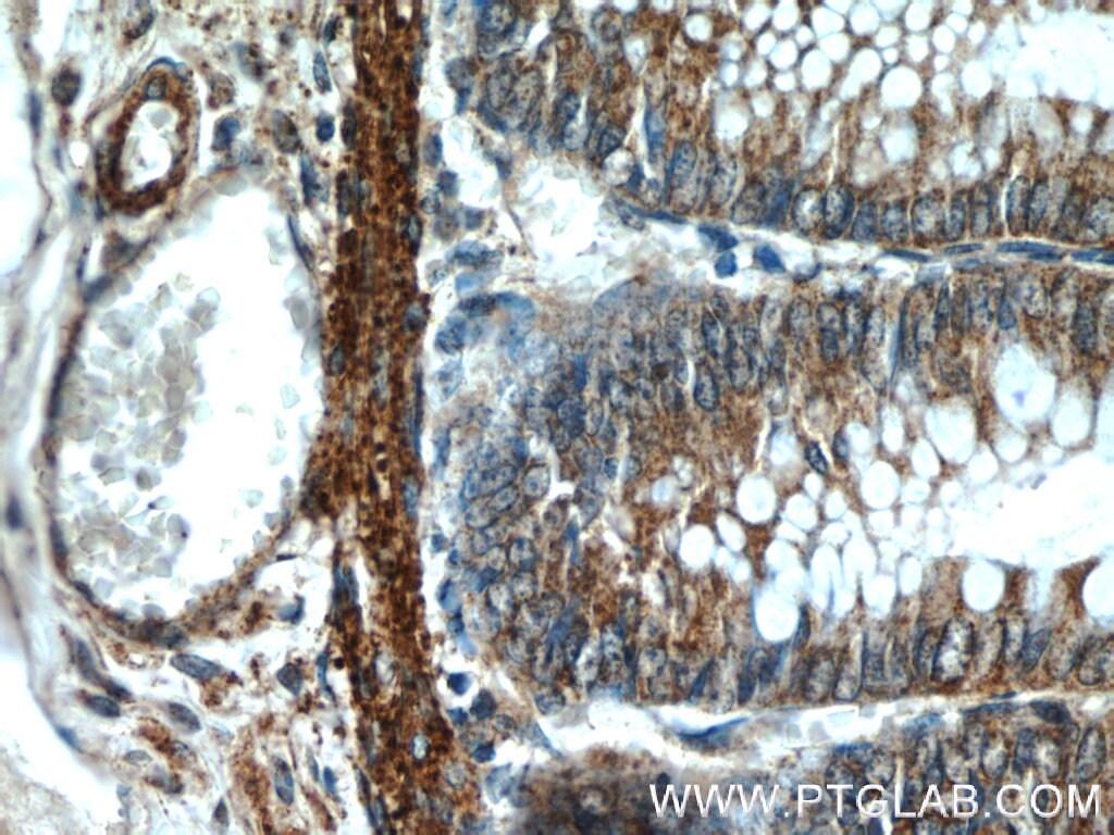 RANKL Antibody in Immunohistochemistry (Paraffin) (IHC (P))